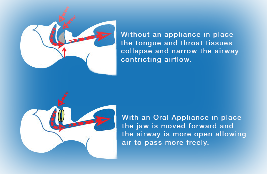 Cpap Alternatives St Paul Amp Oral Appliance Therapy Minneapolis